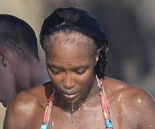 Naomi alopécie